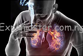 Lung damage as a result of smoking